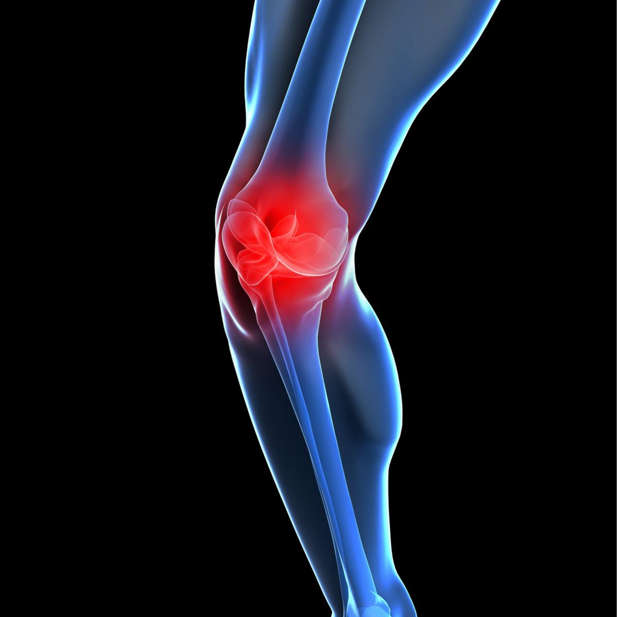 knee-pain-v1