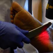Graston Laser Technique