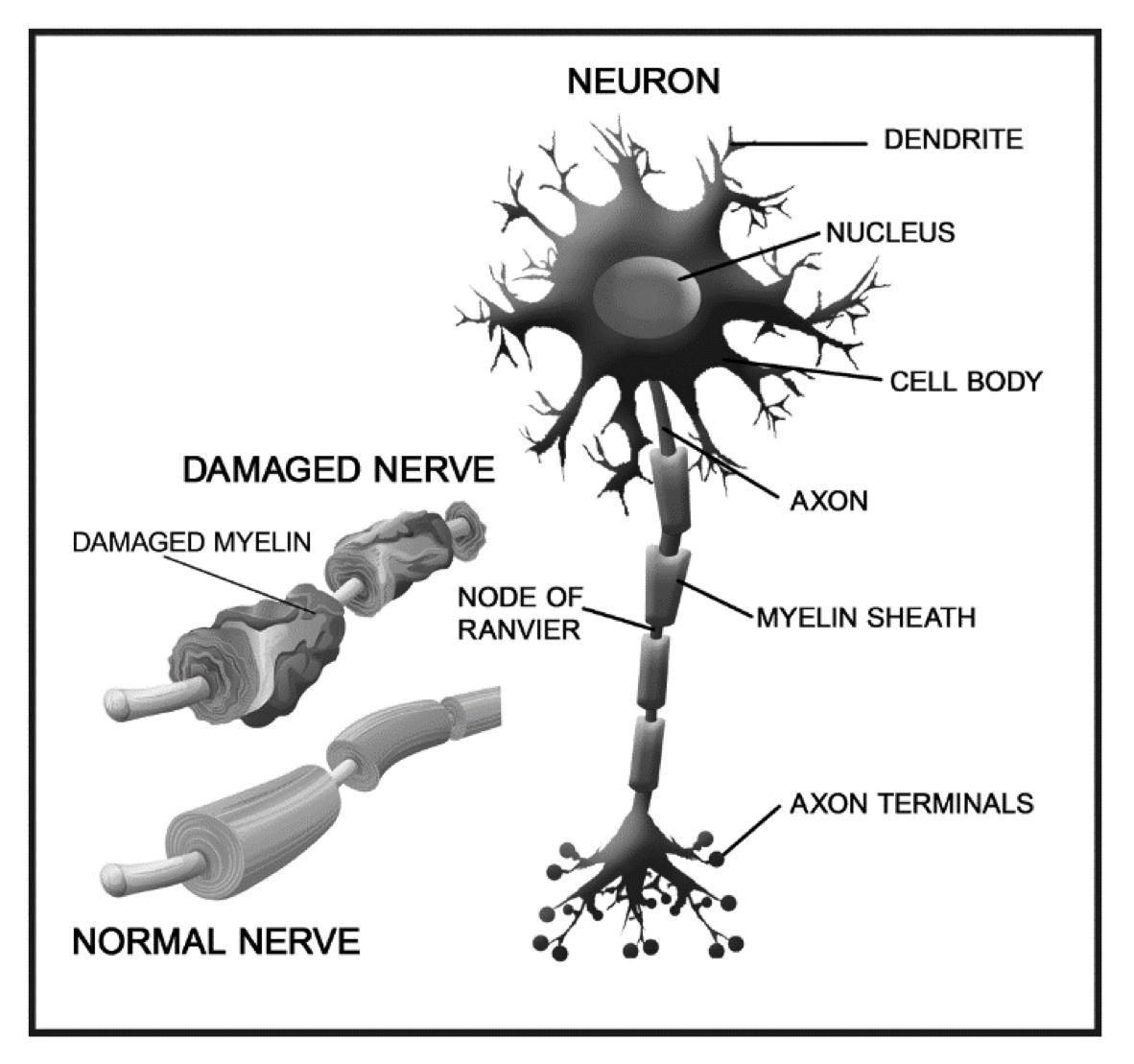 nerve-nurapathy